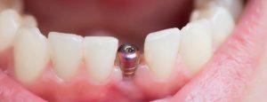 Implant dentaire Lyon : quels sont les dangers ?