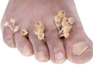 Mycose des pieds : quel est le traitement donné ?